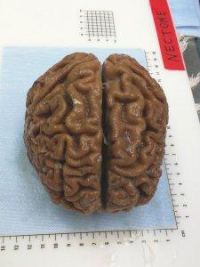preserved-brain